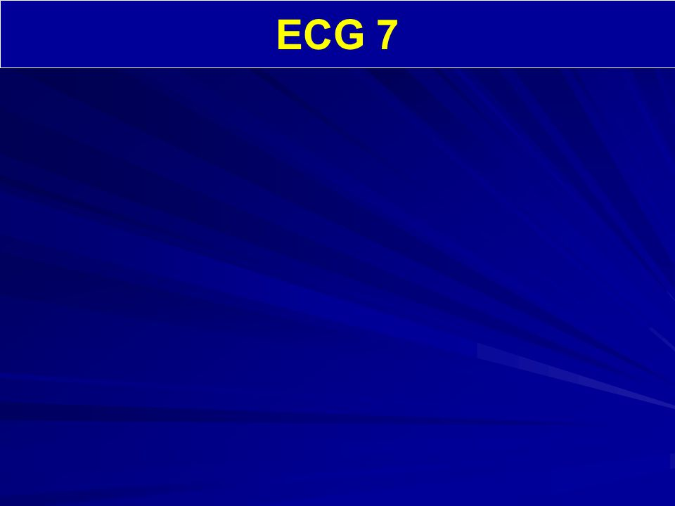 ECG 7