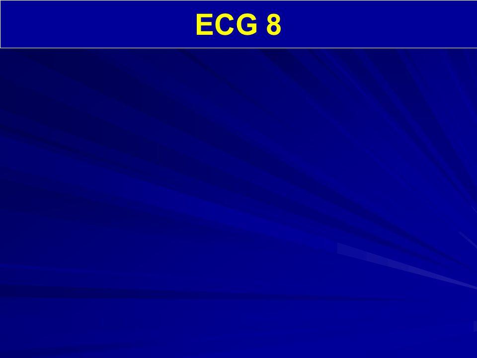 ECG 8