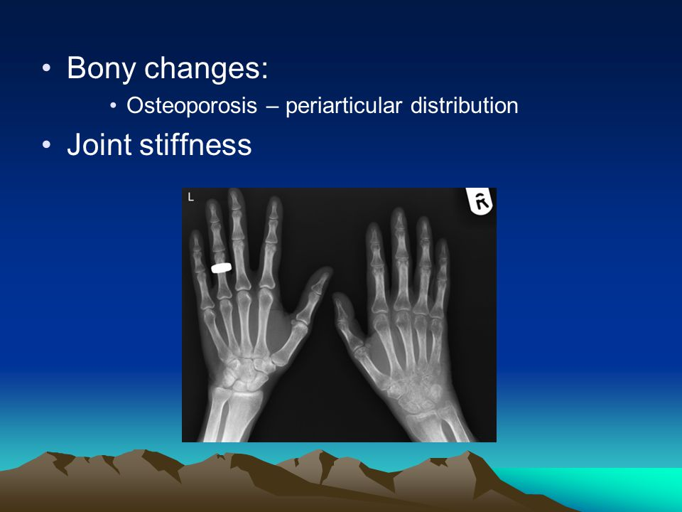 Bony changes: Joint stiffness