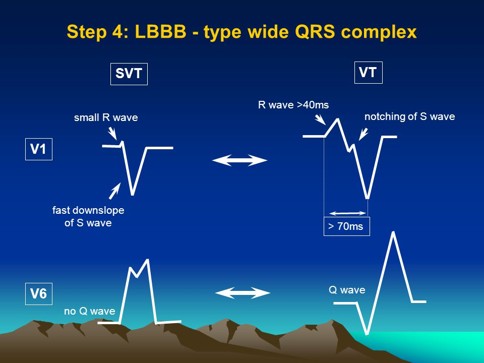 Step 4: LBBB - type wide QRS complex