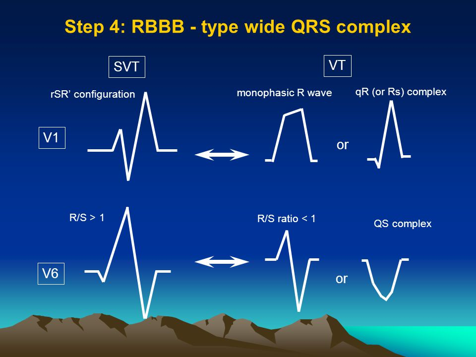 Step 4: RBBB - type wide QRS complex