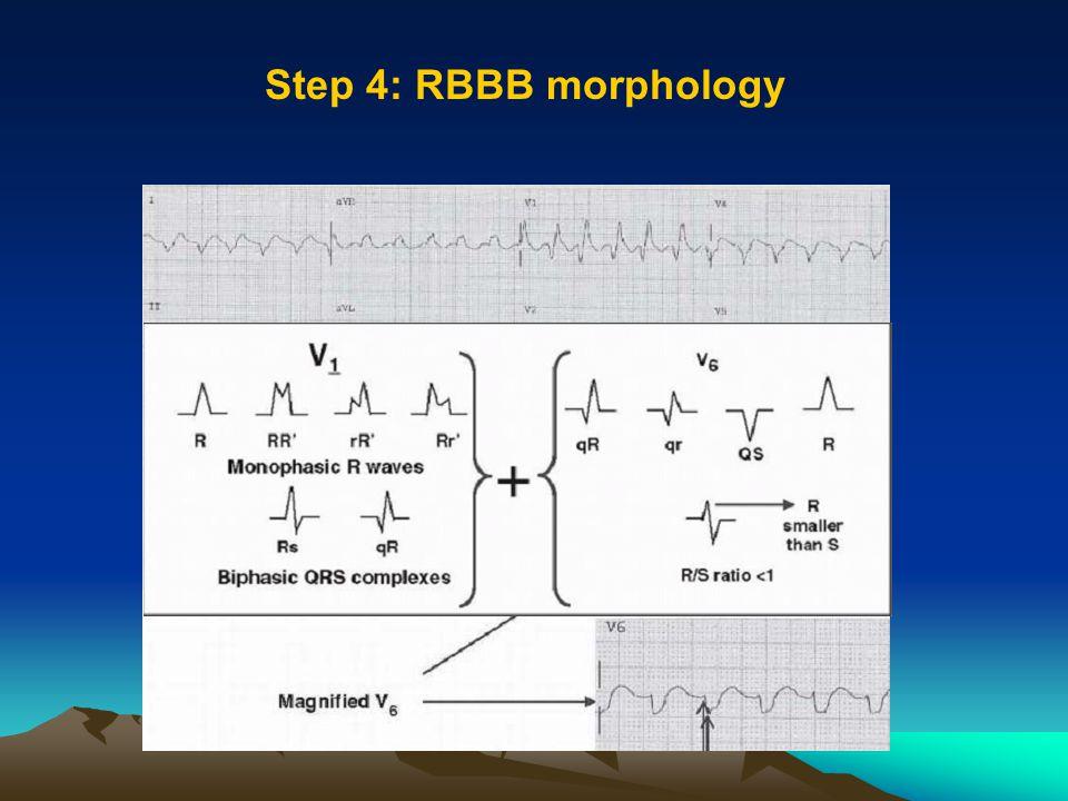 Step 4: RBBB morphology
