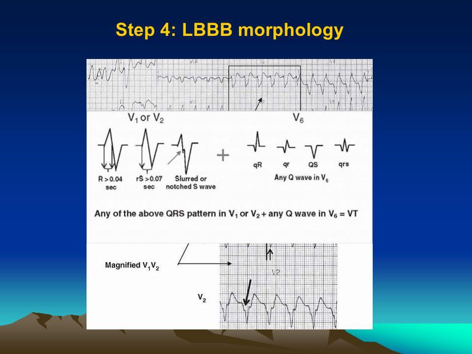Step 4: LBBB morphology