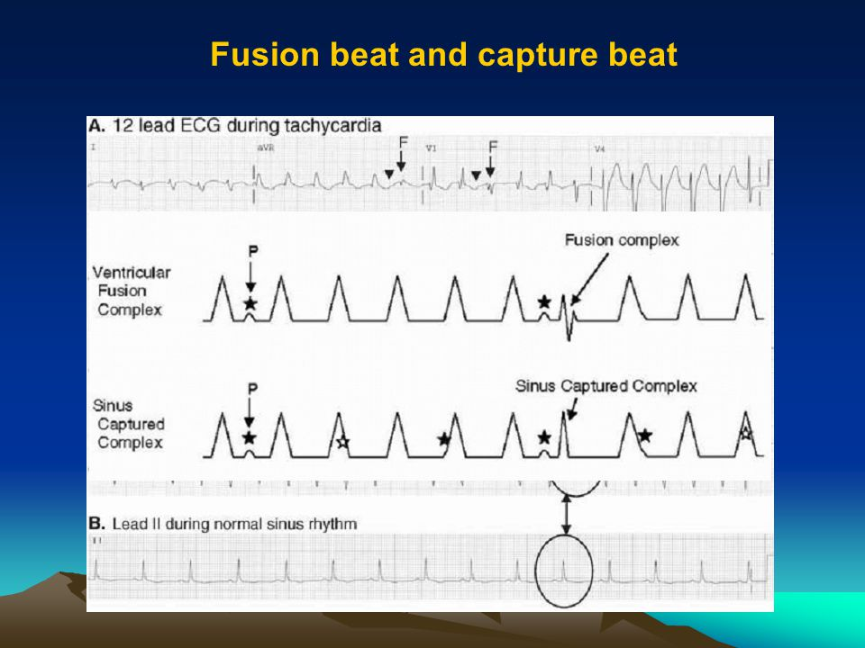 Fusion beat and capture beat