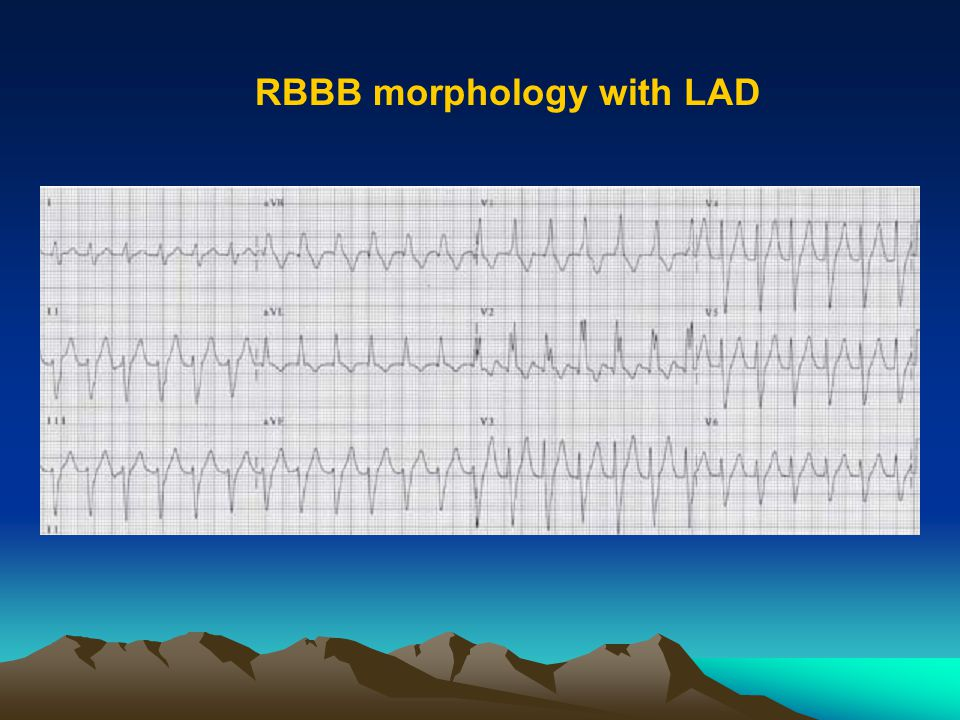 RBBB morphology with LAD