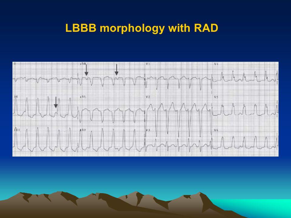 LBBB morphology with RAD