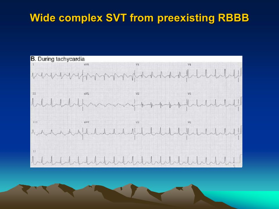 Wide complex SVT from preexisting RBBB