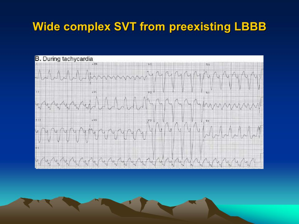 Wide complex SVT from preexisting LBBB