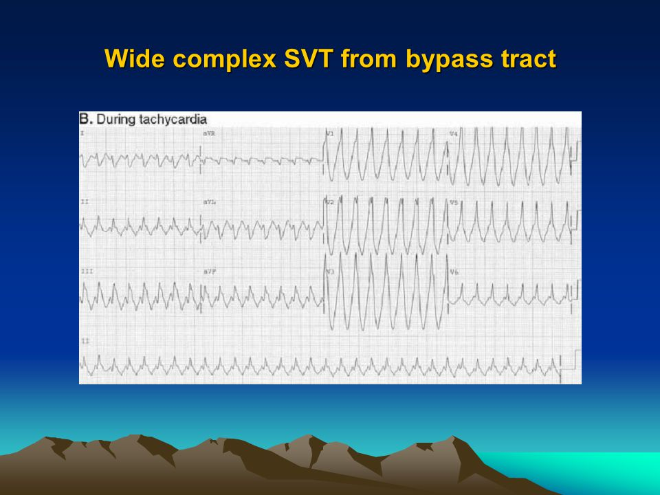 Wide complex SVT from bypass tract