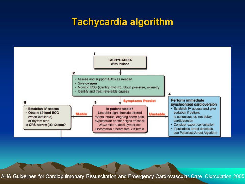 Tachycardia algorithm