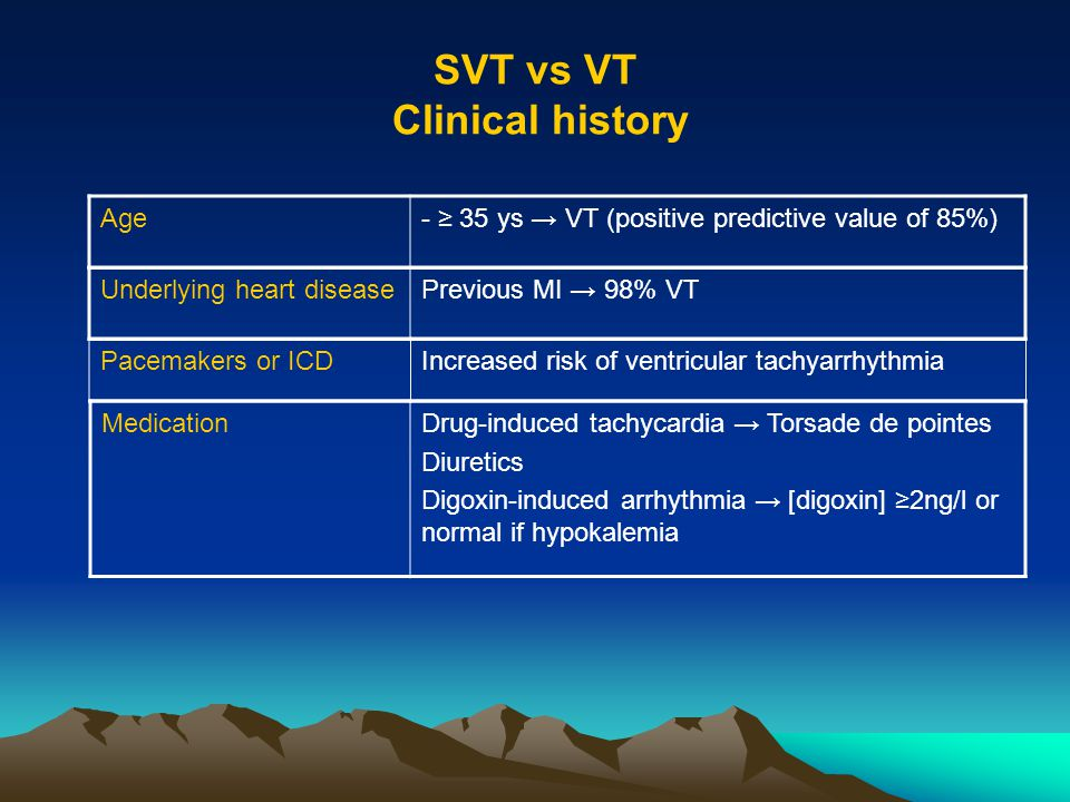 SVT vs VT Clinical history