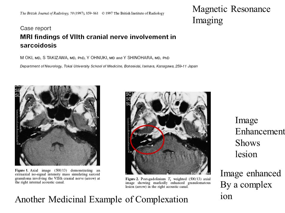 Magnetic Resonance Imaging. Image. Enhancement. Shows. lesion. Image enhanced. By a complex. ion.