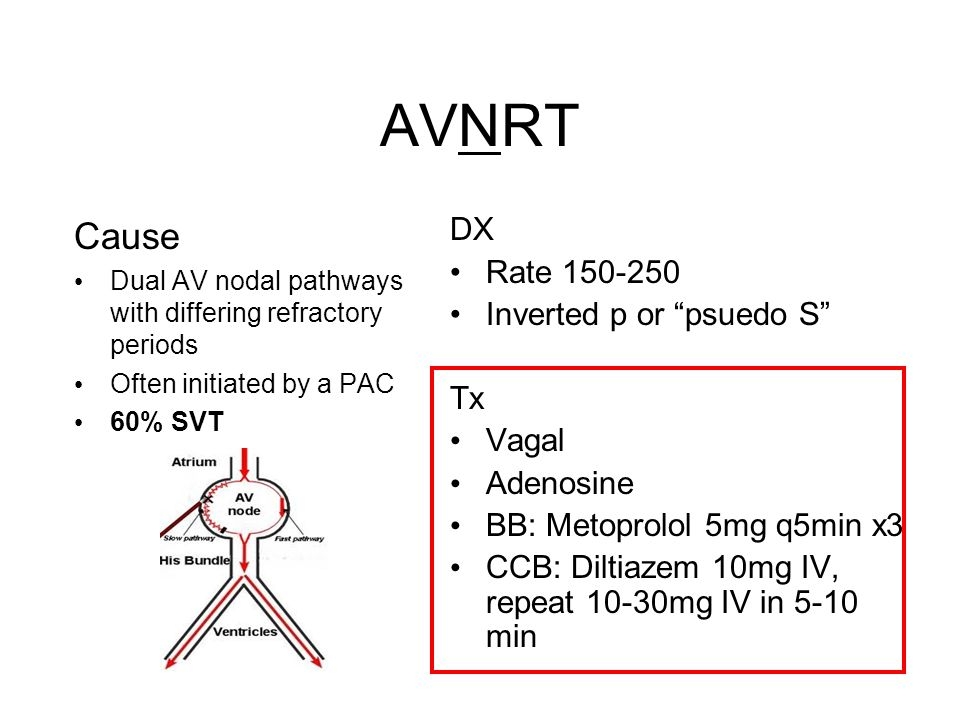 AVNRT Cause DX Rate 150-250 Inverted p or psuedo S Tx Vagal