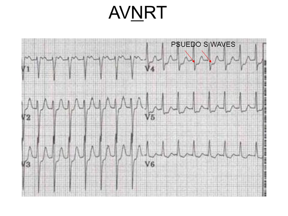 AVNRT PSUEDO S WAVES V4 p wave at the end QRS, and characteristic pseudo S wave