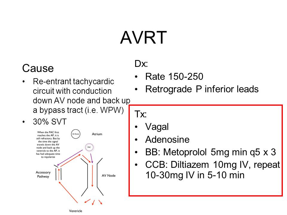 AVRT Cause Dx: Rate 150-250 Retrograde P inferior leads Tx: Vagal