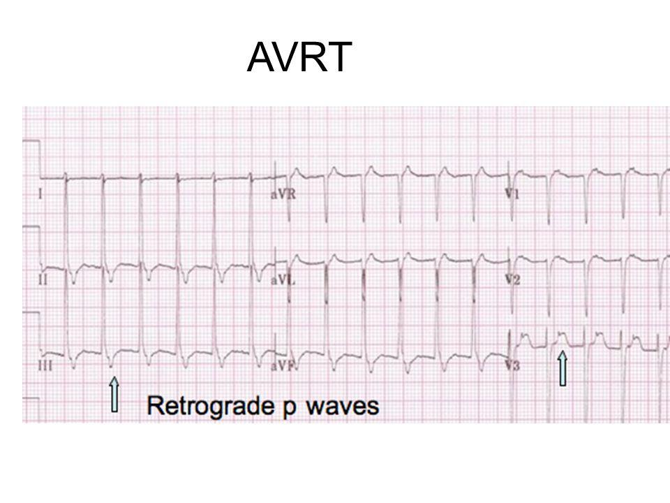 AVRT Narrow complex rate ~ 150