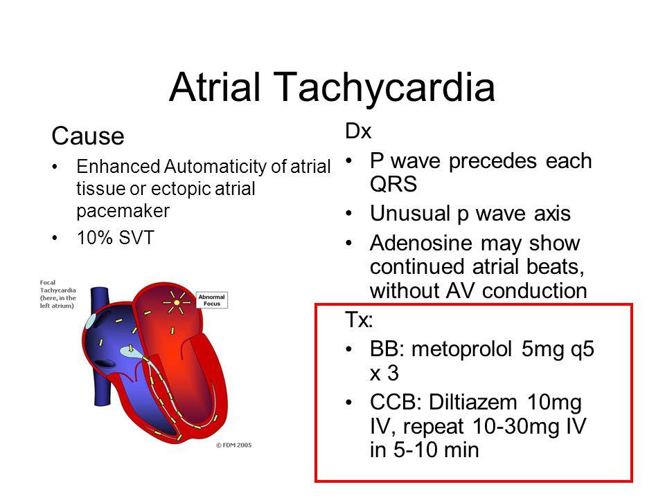 Atrial Tachycardia Cause Dx P wave precedes each QRS