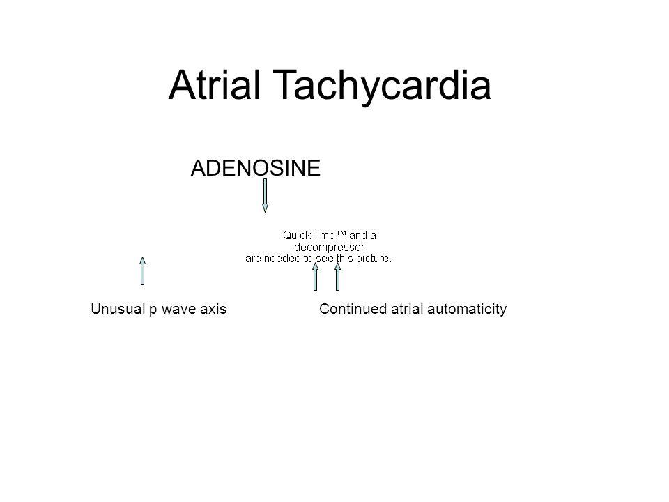 Atrial Tachycardia ADENOSINE Unusual p wave axis