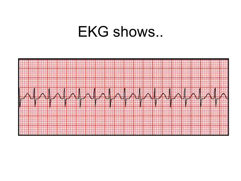 EKG shows..
