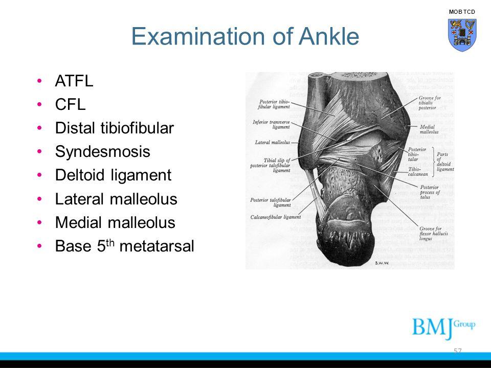Examination of Ankle ATFL CFL Distal tibiofibular Syndesmosis