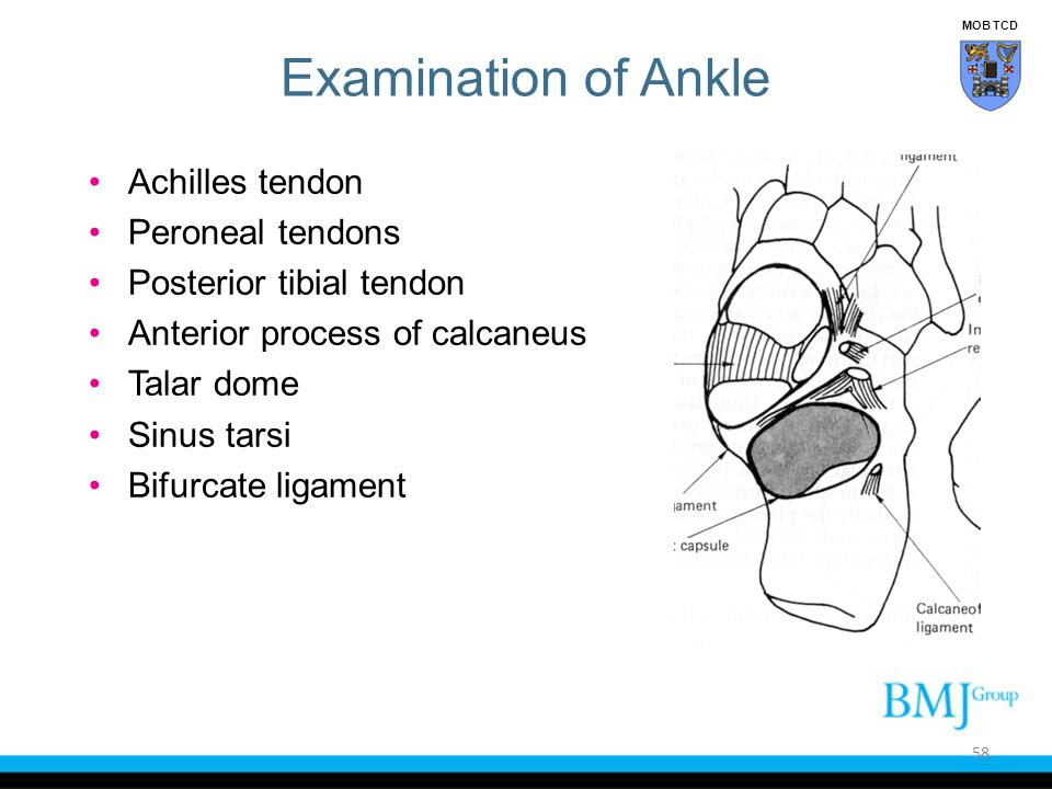 Examination of Ankle Achilles tendon Peroneal tendons