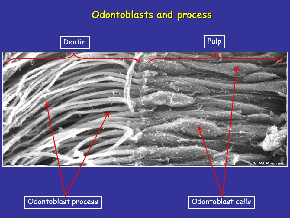 Odontoblasts and process