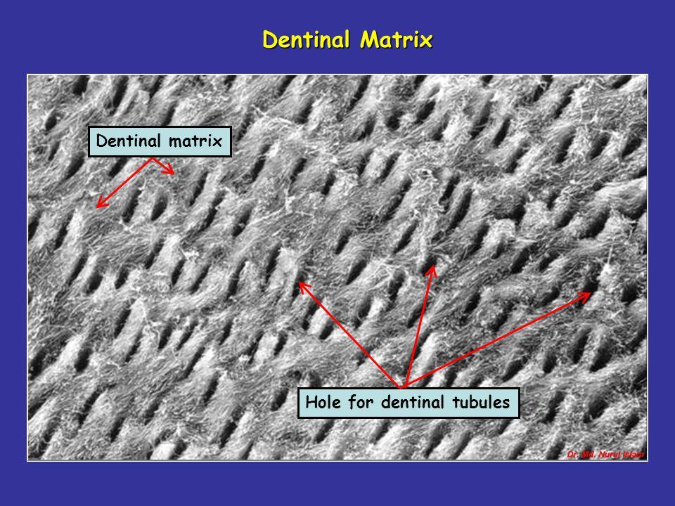 Dentinal Matrix Dentinal matrix Hole for dentinal tubules