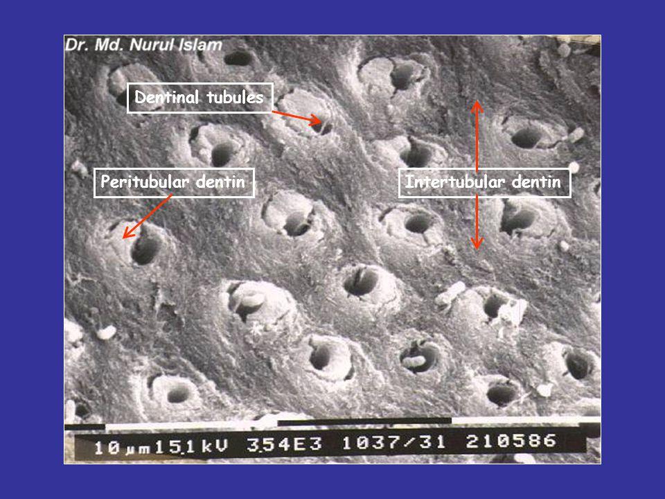 Dentinal tubules Peritubular dentin Intertubular dentin