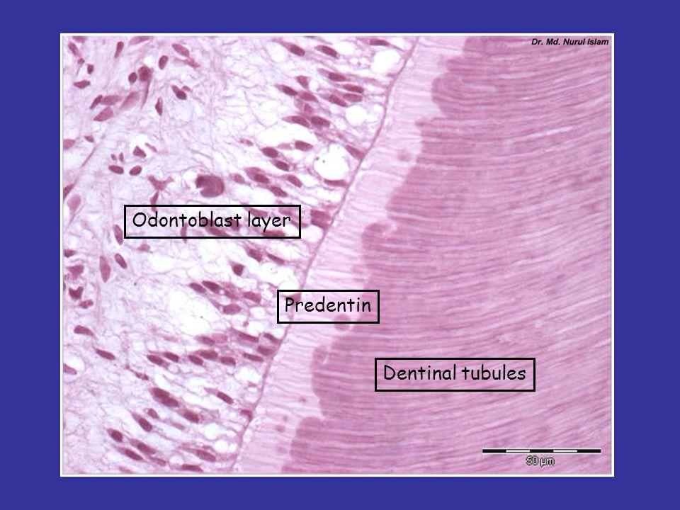Odontoblast layer Predentin Dentinal tubules