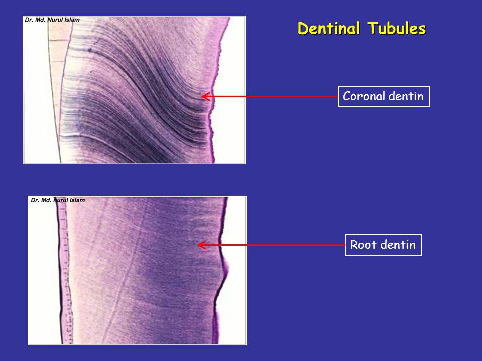 Dentinal Tubules Coronal dentin Root dentin