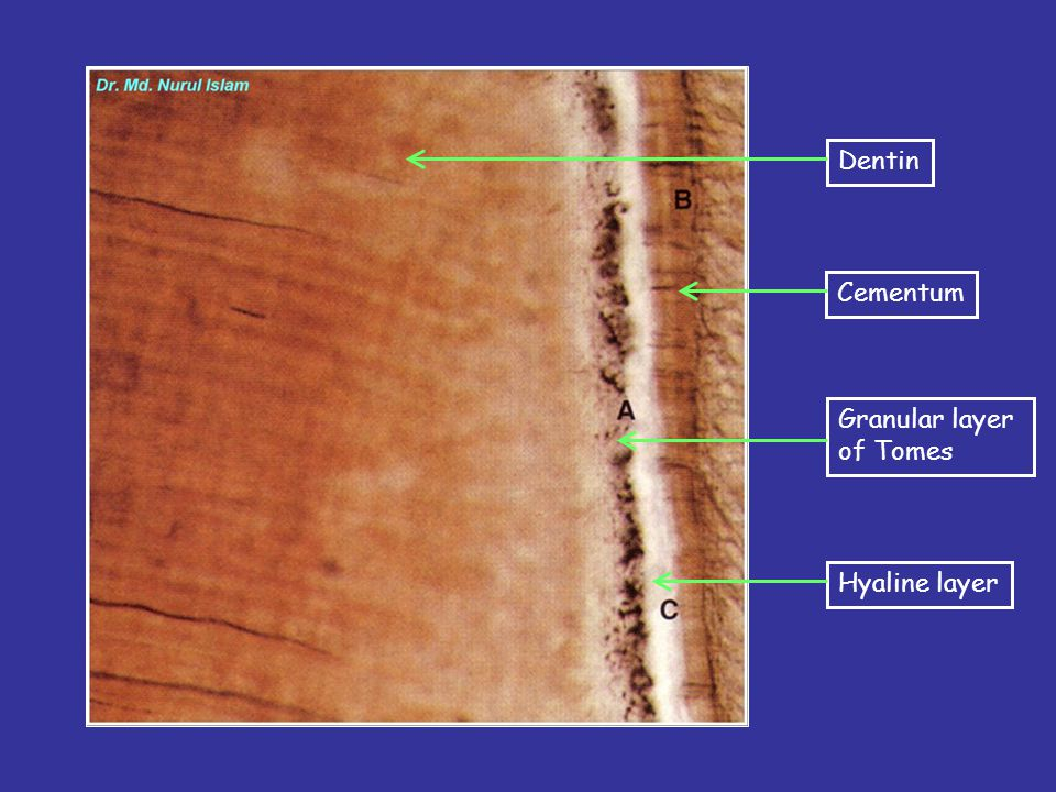 Dentin Cementum Granular layer of Tomes Hyaline layer