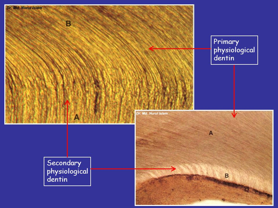Primary physiological dentin Secondary physiological dentin