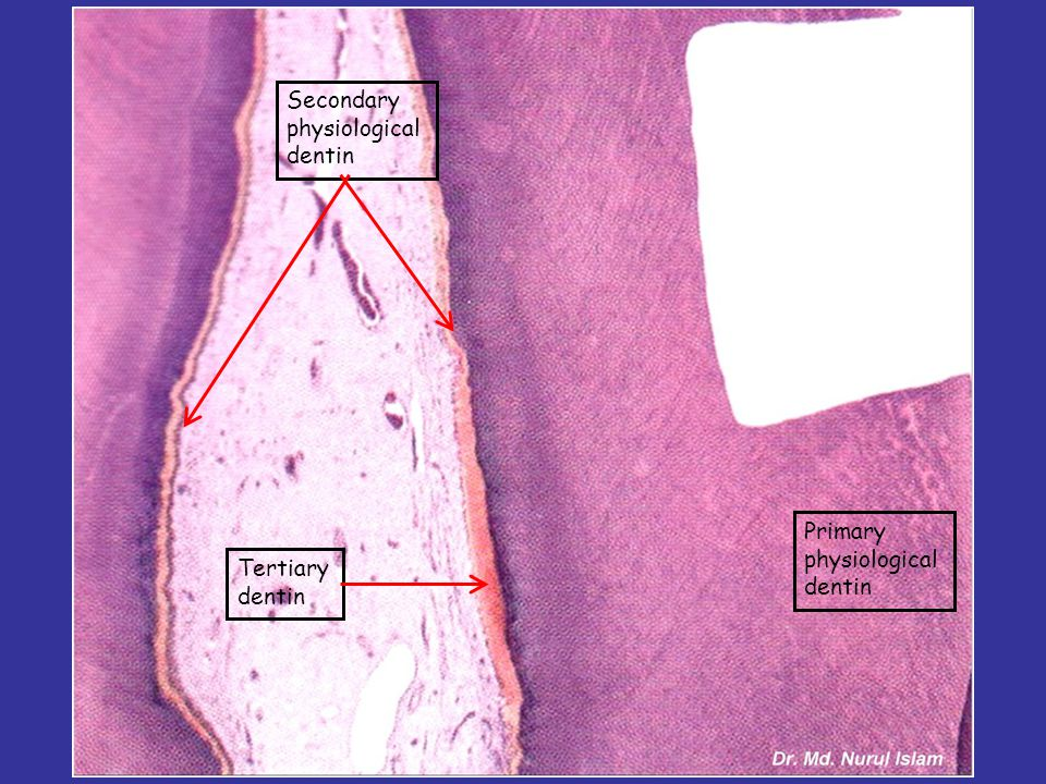 Secondary physiological dentin Primary physiological dentin Tertiary dentin