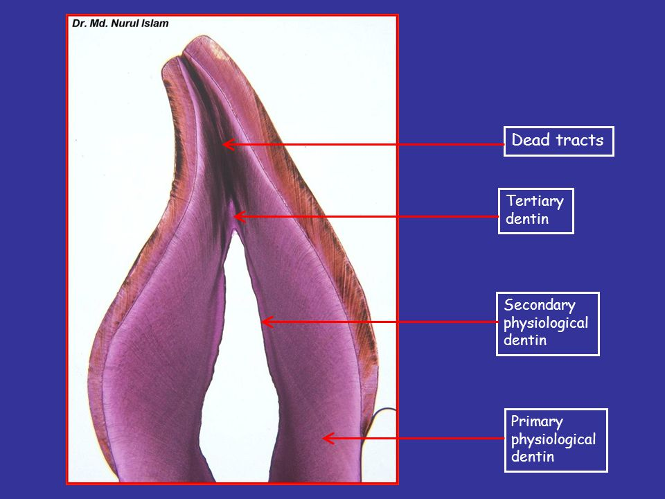 Dead tracts Tertiary dentin Secondary physiological dentin Primary