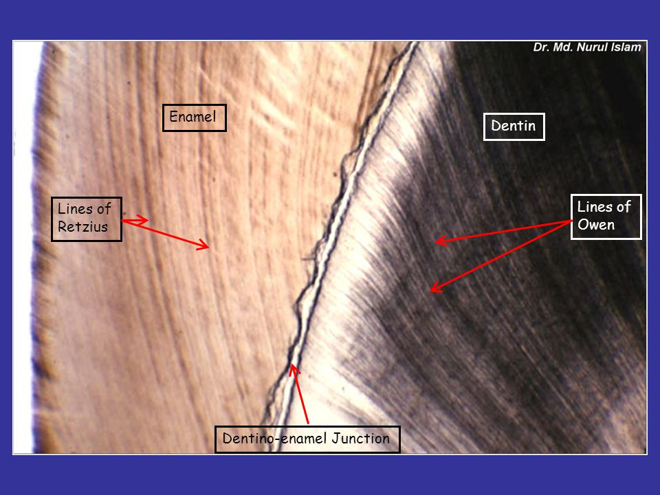 Enamel Dentin Lines of Retzius Lines of Owen Dentino-enamel Junction