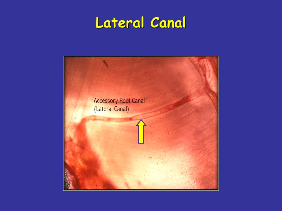 Lateral Canal