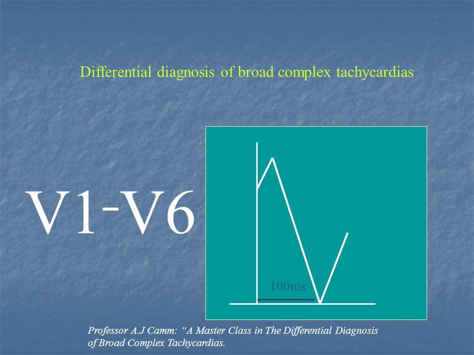 V1 V6 Differential diagnosis of broad complex tachycardias 100ms