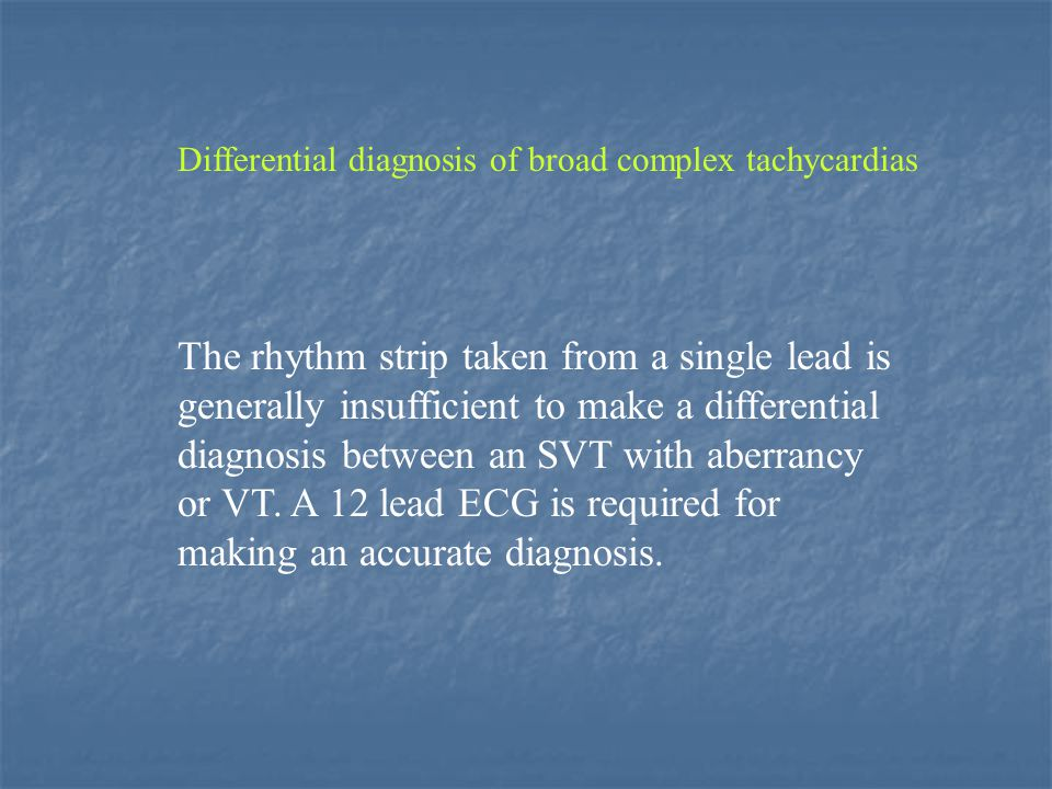 Differential diagnosis of broad complex tachycardias