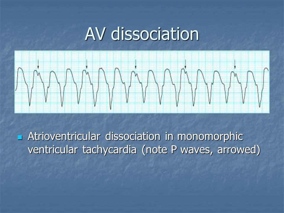 AV dissociation Atrioventricular dissociation in monomorphic ventricular tachycardia (note P waves, arrowed)