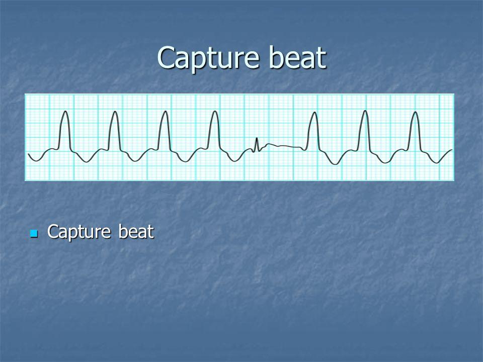 Capture beat Capture beat