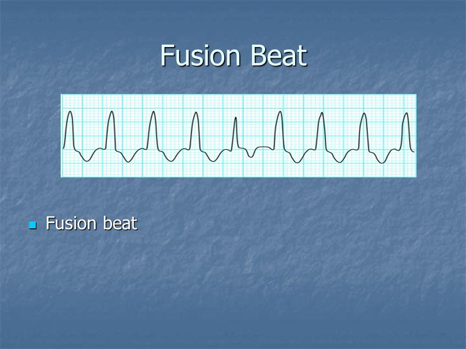 Fusion Beat Fusion beat