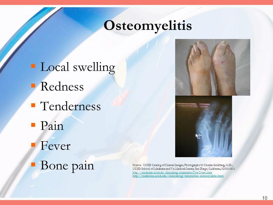 Osteomyelitis Local swelling Redness Tenderness Pain Fever Bone pain