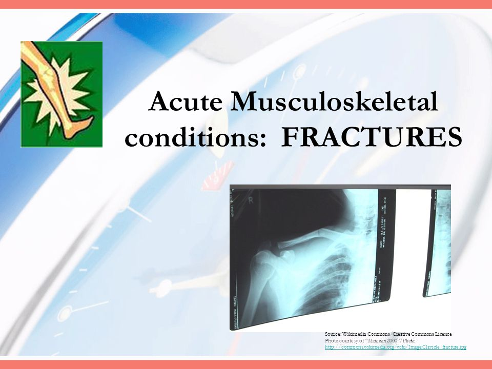 Acute Musculoskeletal conditions: FRACTURES