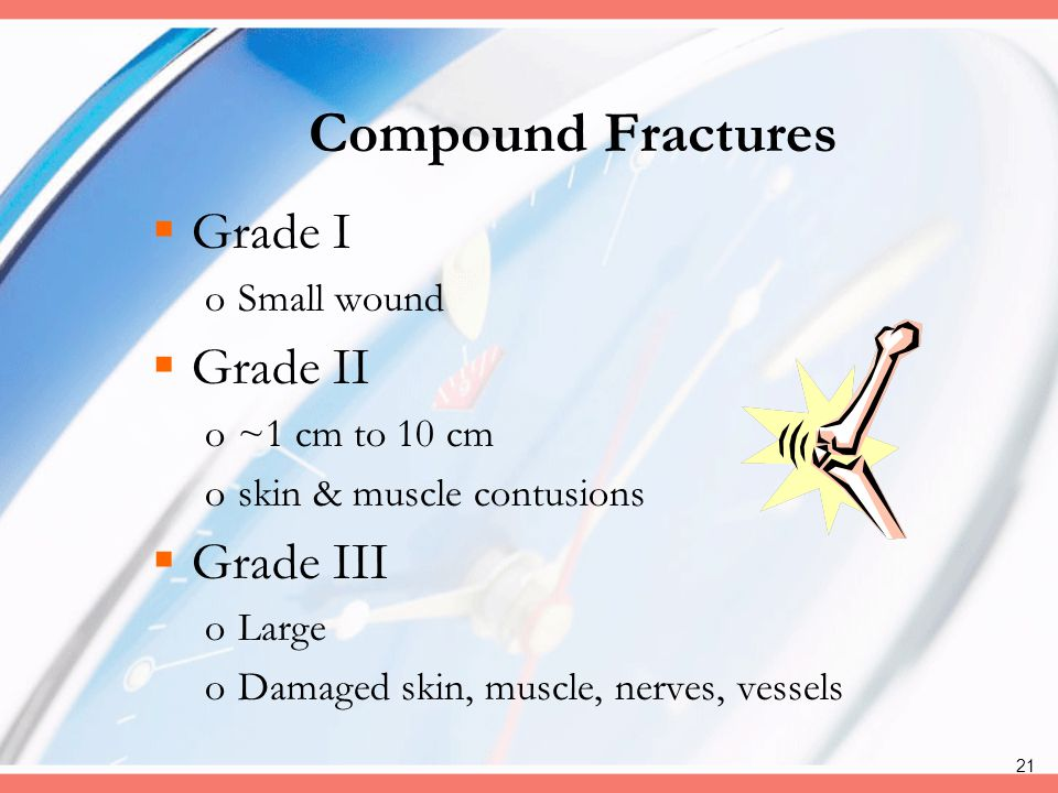 Compound Fractures Grade I Grade II Grade III Small wound
