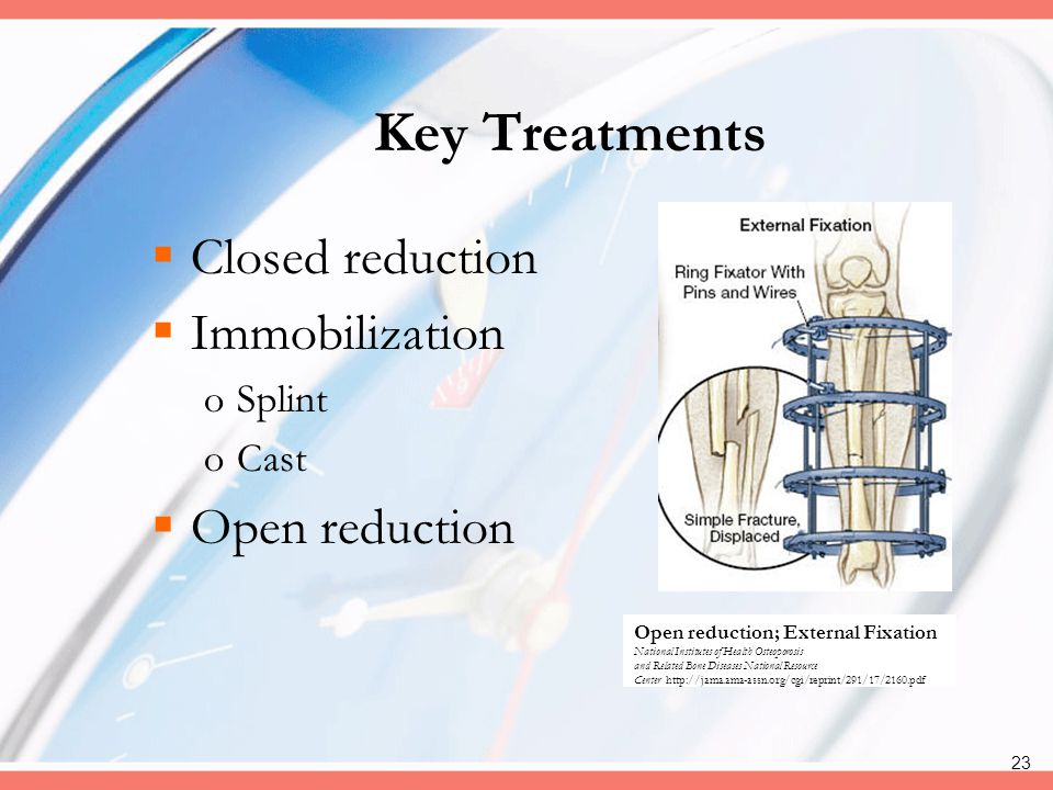 Key Treatments Closed reduction Immobilization Open reduction Splint