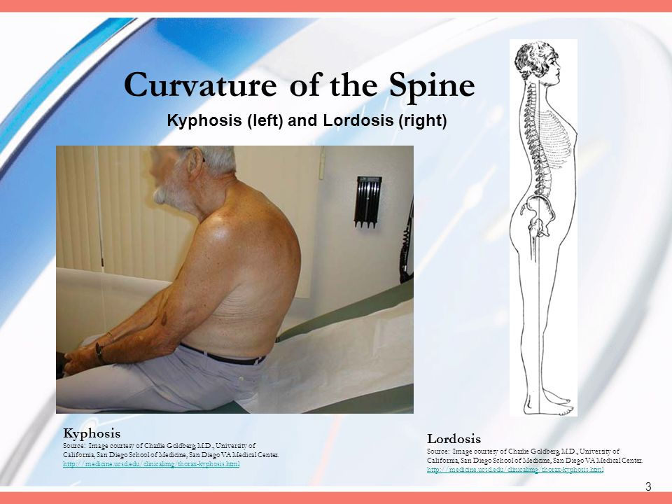 Curvature of the Spine Kyphosis (left) and Lordosis (right) Kyphosis