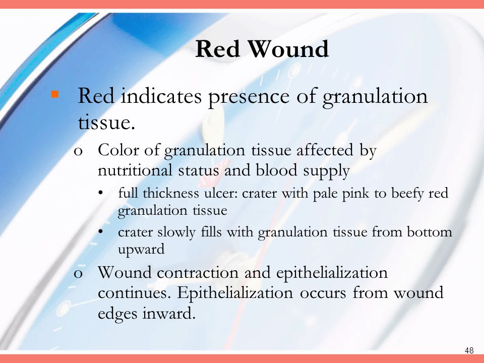 Red Wound Red indicates presence of granulation tissue.