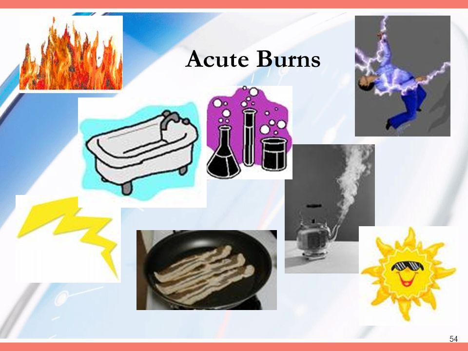 Acute Burns
