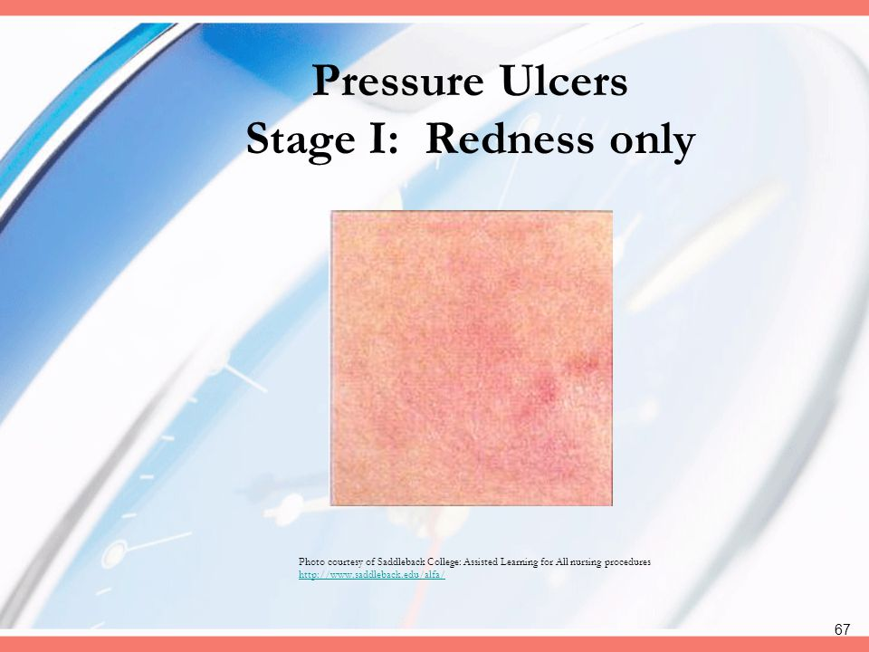 Pressure Ulcers Stage I: Redness only
