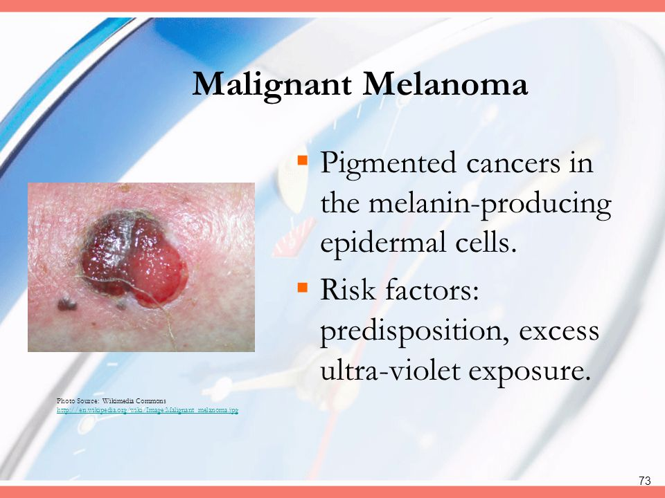 Malignant Melanoma Pigmented cancers in the melanin-producing epidermal cells. Risk factors: predisposition, excess ultra-violet exposure.